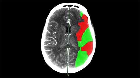 ct brain perfusion clinical image