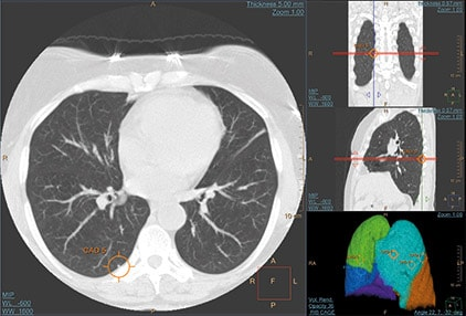 ct-lung-nodule-cad